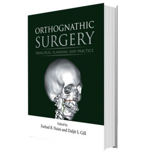 Orthognathic Surgery: Principles, Planning and Practice 2017 1st Edition