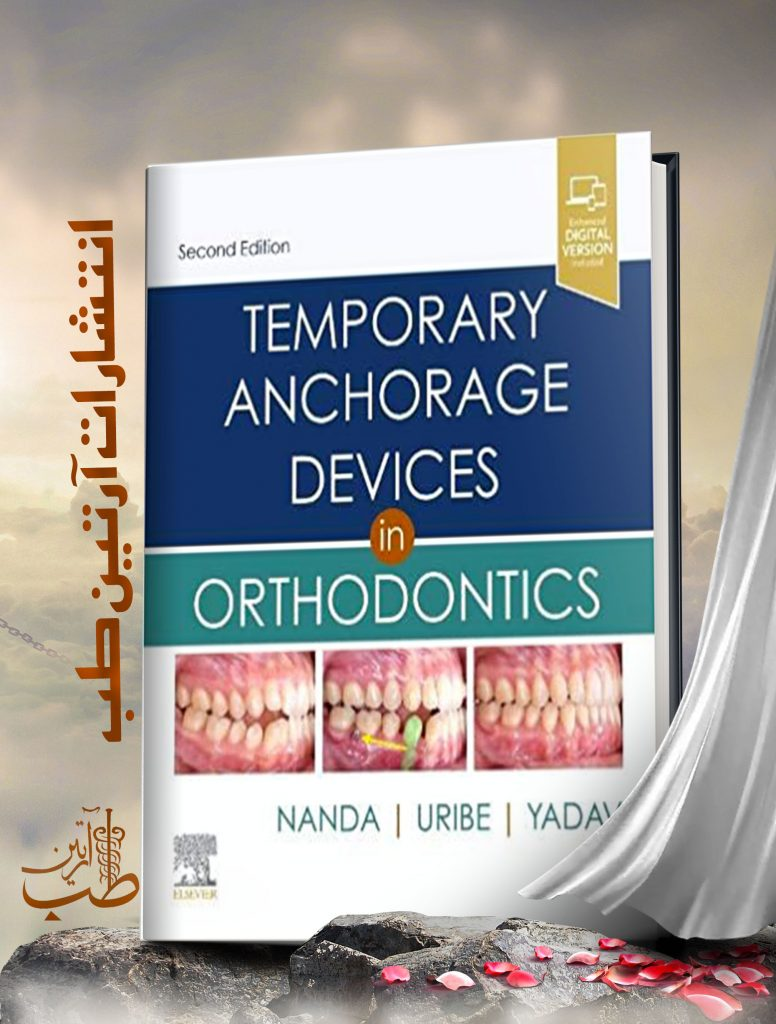 Temporary Anchorage Devices in Orthodontics 2nd Edition2020